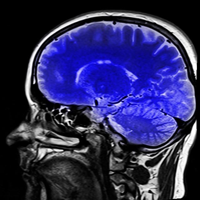 Les ondes des téléphones mobiles à l'attaque de votre cerveau